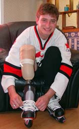 Patient, Eric Watson, below the knee amputee, member 2005 Canadian Amputee Hockey Team